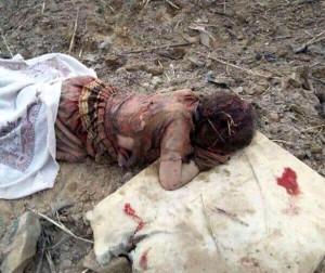 The little girl in Yemen is not asleep, she is dead.