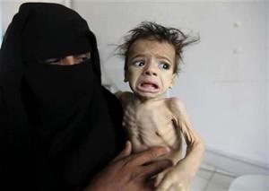 Malnourished in Yemen